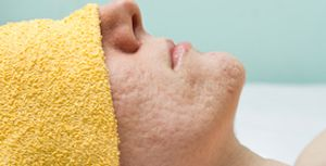 Acne Treatment Surgery