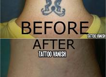 Tattoo Vanish back of neck