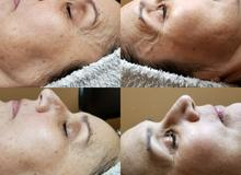 Pure Sculpt Ice Facial Before & After 1 treatment