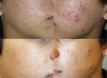 PPO insurance accepted for acne treatments.