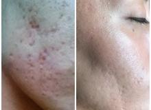 Micro Needling and Chemical peel