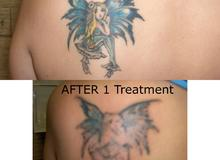 Tattoo Vanish left shoulder blade
