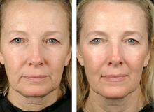 Thermage Before & After 1 treatment